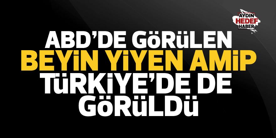 Beyin yiyen amip Türkiye'de de görüldü