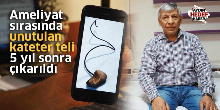 Ameliyat sırasında unutulan kateter teli 5 yıl sonra çıkarıldı